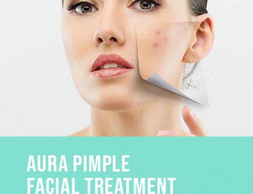 AURA PIMPLE FACIAL TREATMENT